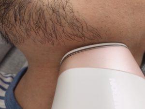 髭脱毛 アイスレディ